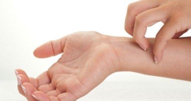 picazón alrededor del área del cuello y diabetes